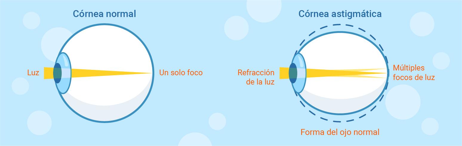 cirugia refractiva astigmatismo hipermetropico